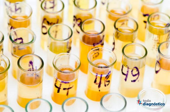 Falso positivo y falso negativo: mal manejo de muestras de orina