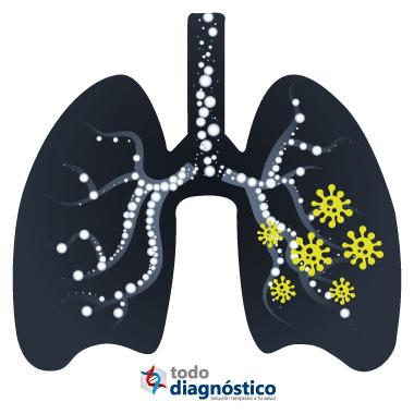Diagnóstico sindrómico: enfermedades respiratorias