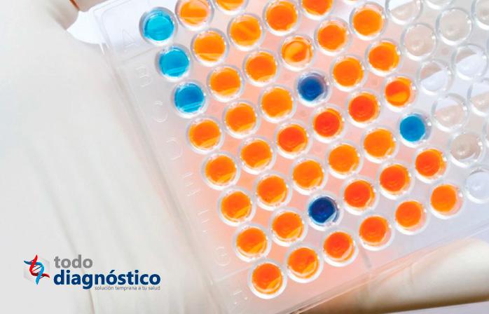 Diagnóstico de la influenza: prueba ELISA