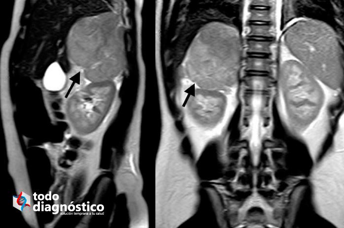 Sobrediagnóstico: incidentaloma, tomografía de tórax que muestra un adenoma suprarrenal