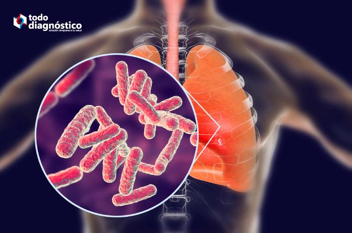 Diagnóstico equivocado: tuberculosis pulmonar
