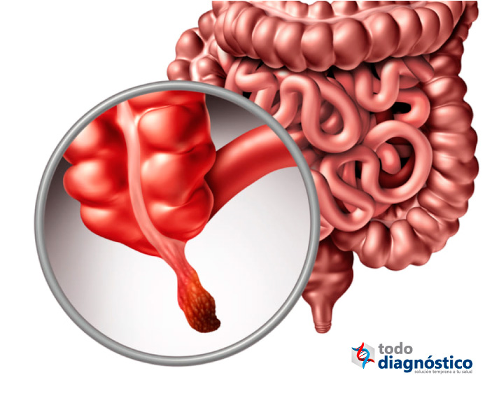 Enfermedades mal diagnosticadas más comunes: apendicitis