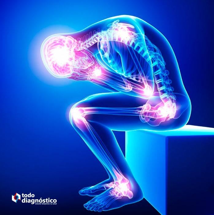 Enfermedades mal diagnosticadas más comunes: fibromialgia