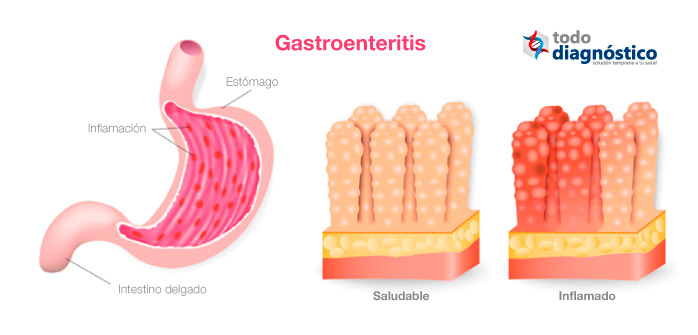 Bacteria Salmonella spp: gastroenteritis