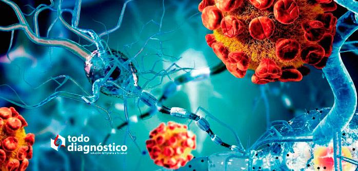 Diagnóstico de la meningitis: meningitis viral