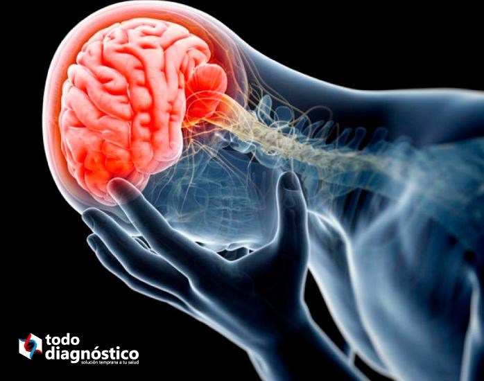 Diagnóstico de la meningitis: infección en el sistema nervioso central