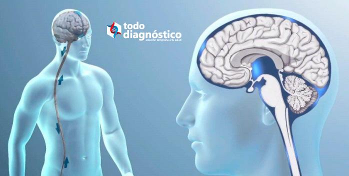 Diagnóstico de la meningitis: líquido cefalorraquídeo