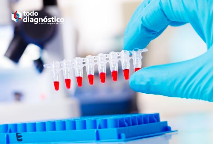 Diagnóstico de la fiebre amarilla: PCR múltiple