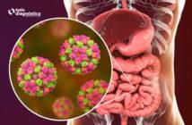 Infección por norovirus