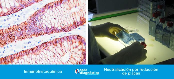 Diagnóstico de la fiebre amarilla: Inmunohistoquímica y Neutralización por reducción de placas