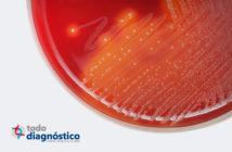 Cuándo se debe realizar un hemocultivo