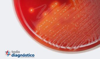Diagnóstico de sepsis: hemocultivo