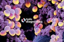 Superbacterias resistentes a los antibióticos: Staphylococcus Aureus