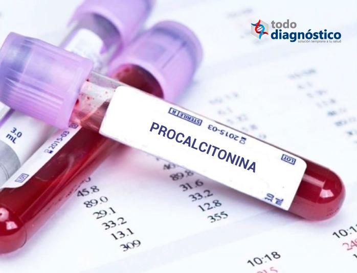 Procalcitonina: biomarcador indicativo de sepsis bacteriana en el diagnóstico molecular