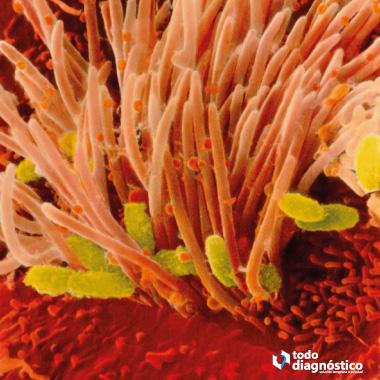 Bacterias de la tos ferina alojadas en las células ciliadas de la mucosa respiratoria