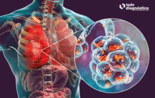 Pulmones con bacterias: una de las causas de la neumonía