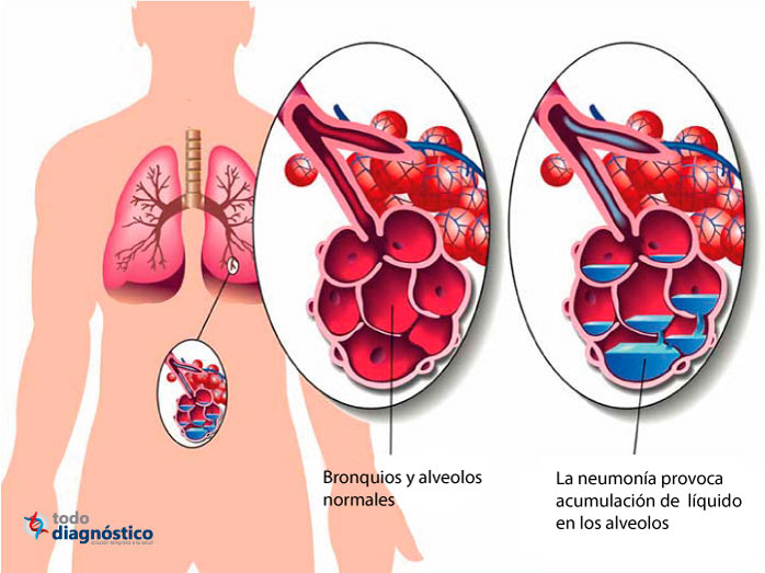 ilustración alveolos con neumonía