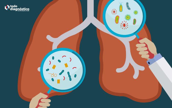 Bacterias atípicas en pulmones: neumonía por mycoplasma pneumoniae