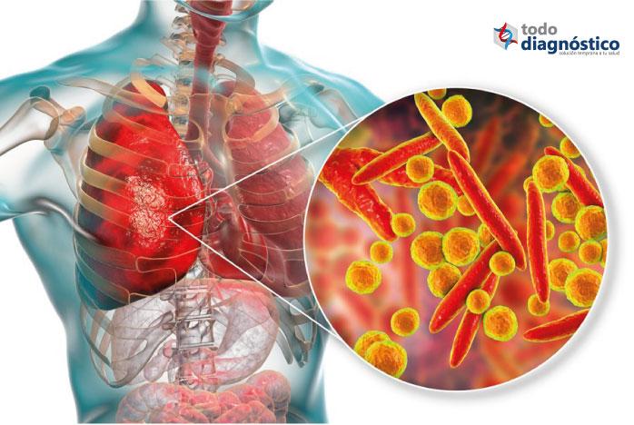 Pulmones con neumonía por mycoplasma pneumoniae