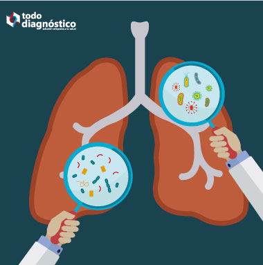 Ilustración pulmón con bacterias diversas