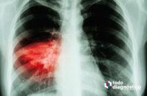 Diagnóstico sindrómico de la neumonía por SARS-CoV-2