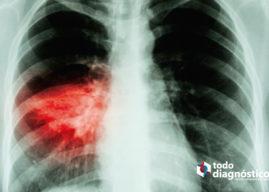 Diagnóstico sindrómico de la neumonía: diagnóstico rápido de la neumonía por SARS-CoV-2