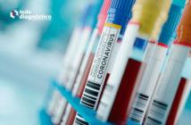Inmunoensayos en SARS-CoV-2