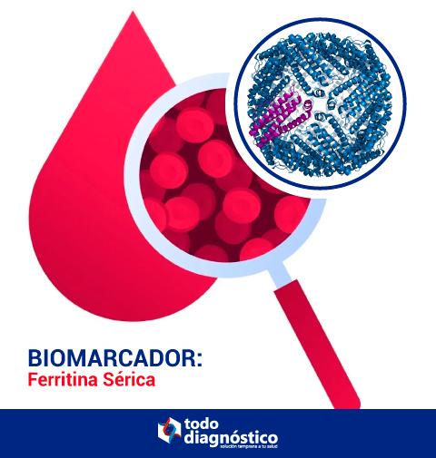 Ferritina Sérica: biomarcador relevante para Covid-19