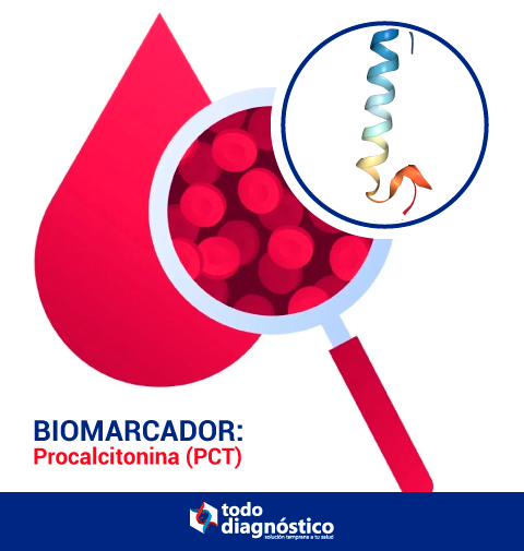 Procalcitonina, biomarcador relevante en SARS-CoV-2