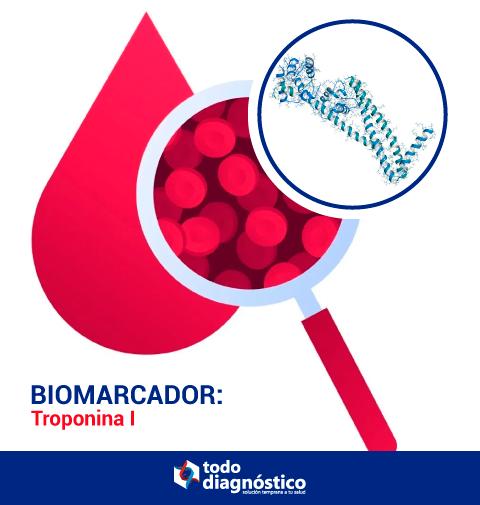 Troponina I, biomarcador relevante en inmunoensayos en SARS-CoV-2