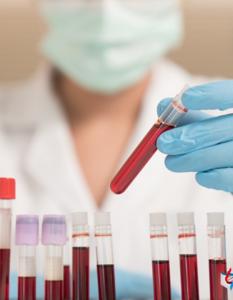 El laboratorio clínico en el paciente con SARS-CoV-2:biomarcadores y manejo de pacientes con Covid-19
