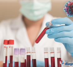 Necesitamos tu ayuda para difundir esta Información: biomarcadores para el manejo de pacientes con Covid-19