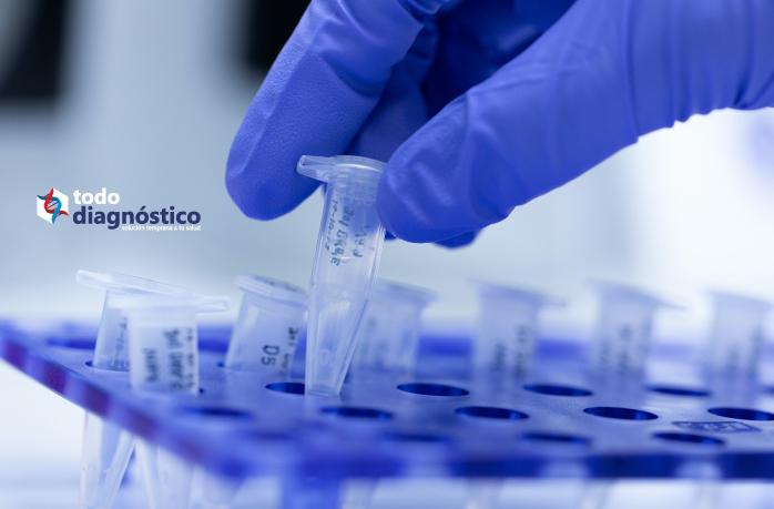 Diagnóstico sindrómico de enfermedades parasitarias: PCR para la detección rápida de infección