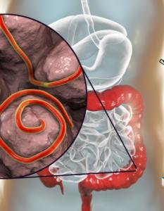 Diagnóstico sindrómico de infección y enfermedad gastrointestinal por parásitos
