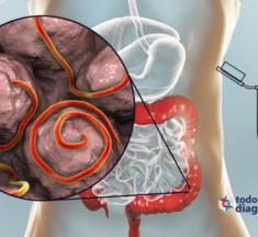Diagnóstico sindrómico de las infecciones parasitarias: detección oportuna de enfermedades gastrointestinales