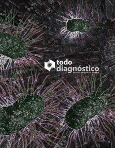 SIBO: sobrecrecimiento bacteriano en intestino delgado y sus implicaciones