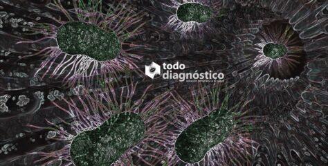 SIBO: sobrecrecimiento bacteriano en el intestino delgado y sus implicaciones