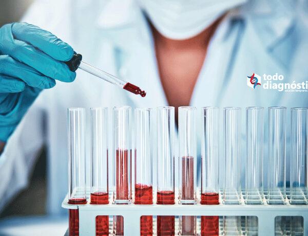 Requisitos de las muestras para hemocultivos